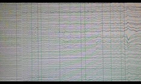 alejandro galvao, electroencefalograma, neurociencia